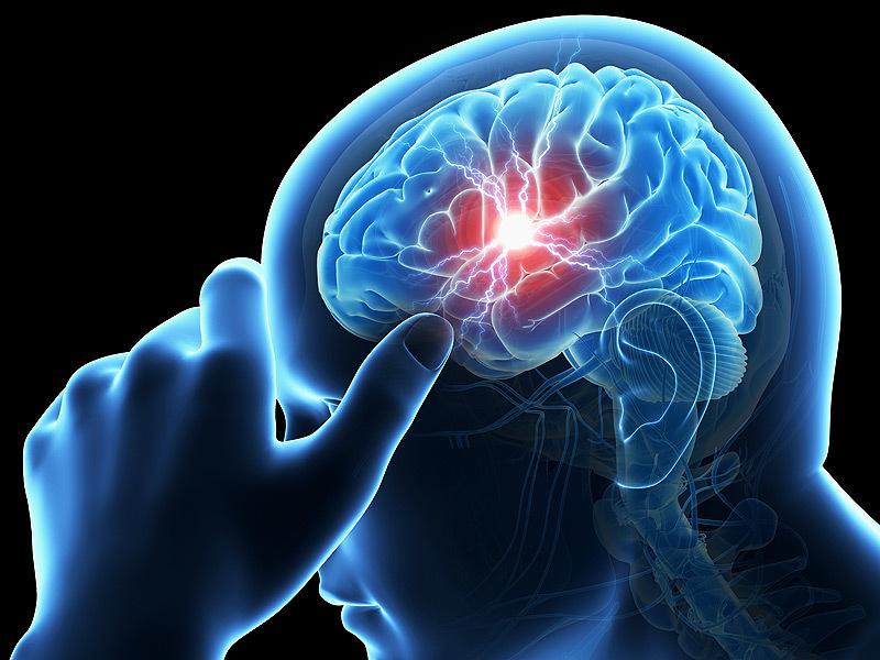 đột quỵ, triệu chứng đột quỵ, điều trị đột quỵ, nhận biết đột quỵ, dấu hiệu đột quỵ, phòng chống đột quỵ