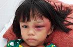 Bé gái bị mẹ kế đánh sưng mắt, châm thuốc lá bỏng tay