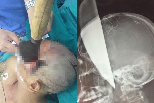 Nam thanh niên bị dao nhọn 40cm đâm xuyên não