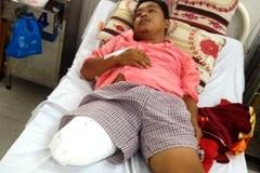 Cầu cứu Bộ trưởng Y tế khi bị cưa chân do BS chẩn đoán sai