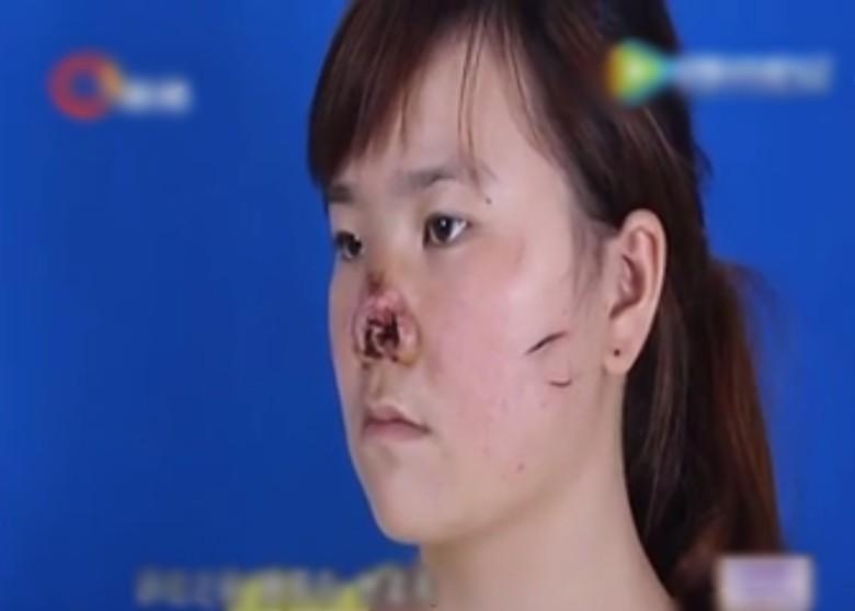 Thiếu nữ cưới chui, bị chồng cắn nát mũi