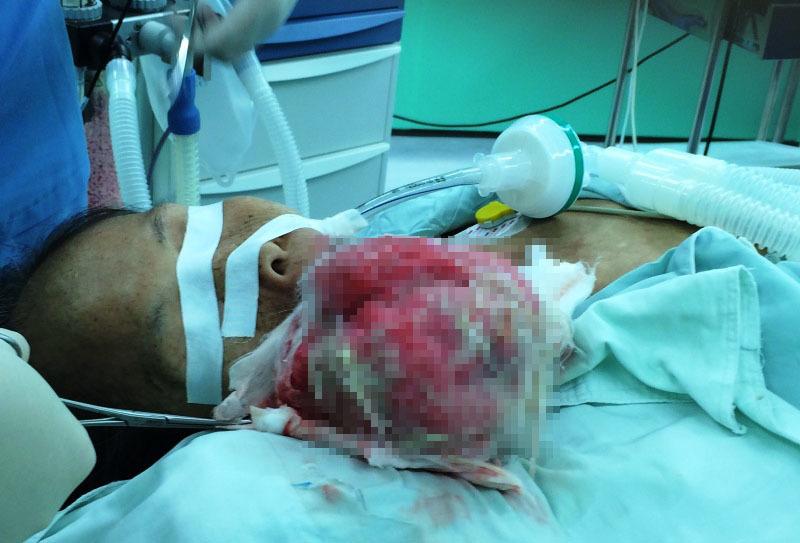 khối u, vòng họng, ung thư, bệnh nhân, Vũng Tàu