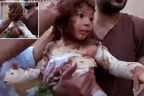 Xót xa cảnh dùng bùn chữa bóng cho bé gái Syria bị trúng bom