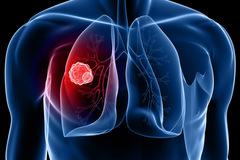 Chỉ hít khói cũng ung thư phổi