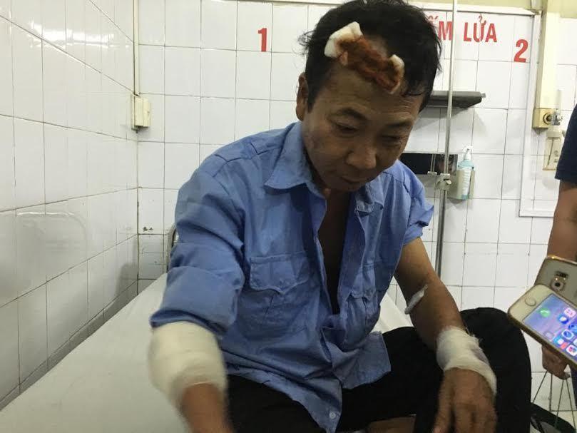 Tai nạn kinh hoàng ở Pháp Vân: Lời kể người thoát chết