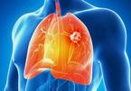Những số liệu kinh hoàng về ung thư phổi