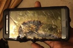Samsung Galaxy Note 7 lại nổ, một cậu bé 6 tuổi bỏng nặng