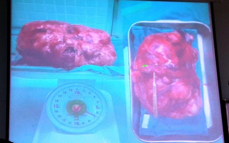 bướu khủng, mang bầu, Bệnh viện Chợ Rẫy, bướu sau phúc mạc, khổng lồ
