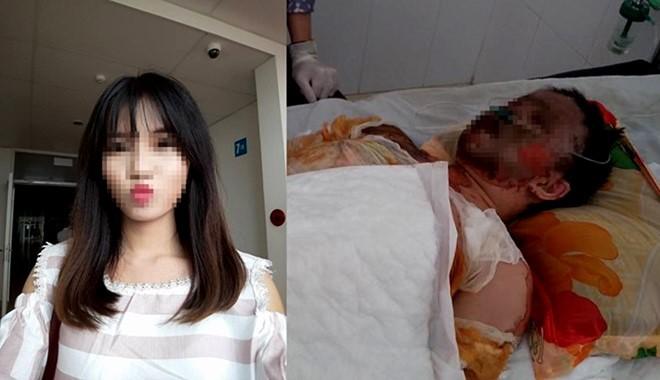 Vụ đựng xăng vào túi ni lông: Cô gái xinh đẹp đã tử vong
