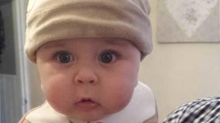 Bị người lạ hôn, bé 14 tháng tuổi phải sống chung cả đời với virus
