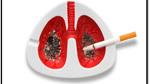Làm ngay những việc sau để phòng tránh ung thư phổi