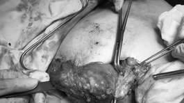 Bơm silicon nâng ngực, người phụ nữ phải cắt bỏ đôi vú