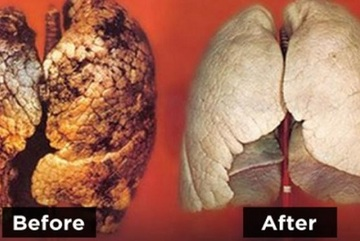 Ngừa ung thư phổi, detox chỉ 3 ngày