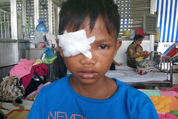 Cậu bé nghèo cần 15 triệu lấy dị vật xuyên hốc mắt