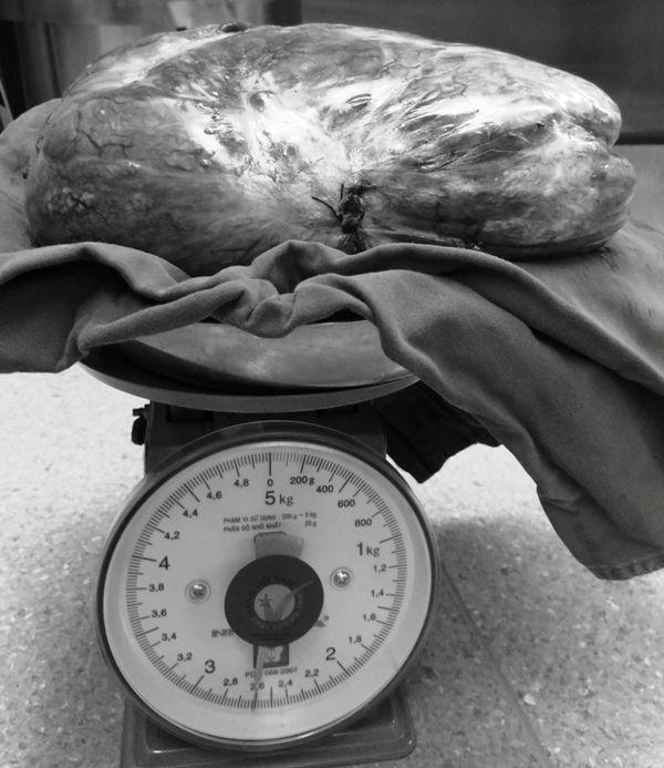 Phẫu thuật khối u gần 3 kg đè lệch tim phổi