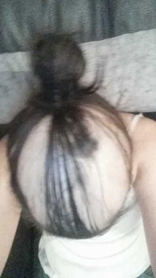 rụng tóc vì căng thẳng, rụng tóc vì căng thẳng khi yêu, rụng hết cả tóc