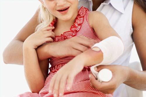 trẻ bị bỏng, cách sơ cứu, trẻ bị bỏng do lỗi của bố mẹ, bị bỏng, bỏng ở trẻ