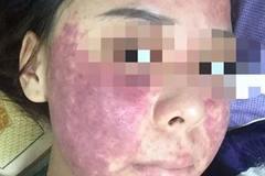 Cô gái bị lừa mua kem trị mụn không rõ nguồn gốc khiến mặt xuất huyết biến dạng