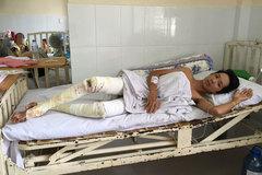 Mẹ nghèo mếu máo xin cứu con trai bị bỏng nặng