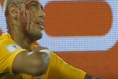 Neymar chảy máu đầm đìa sau cú giật cùi chỏ của hậu vệ Bolivia