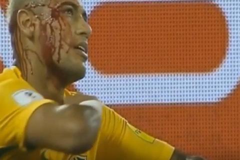 Neymar máu chảy đầm đìa