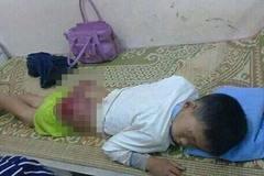 Phẫn nộ bé trai bị bố đẻ đánh bầm dập mông, nhập viện