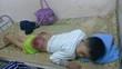 Bé 13 tuổi bị bố đánh bầm mông, rướm máu phải nhập viện