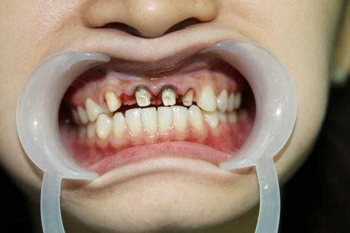 Đau răng thoáng qua, hóa ra hoại tủy