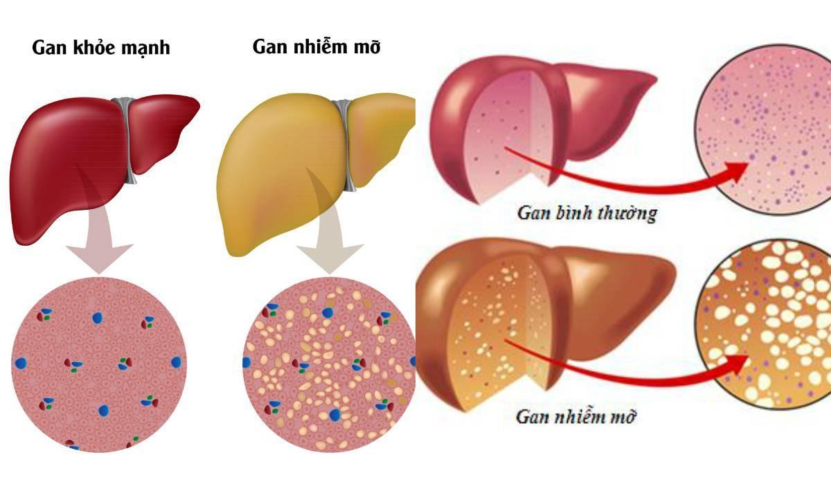 Kết quả hình ảnh cho gan nhiễm mỡ