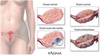 9 điều cực quan trọng về u nang buồng trứng