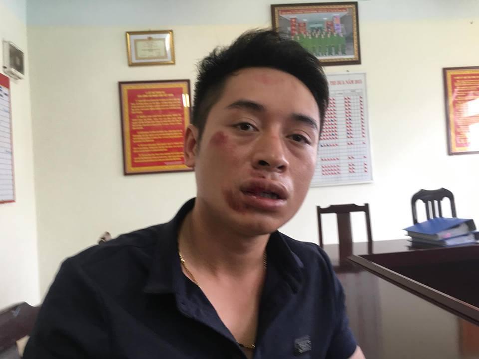CSGT, CSGT bị đánh gãy răng, Hà Nội