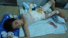 Ngã vào chảo dầu sôi, bé trai 6 tuổi nguy kịch tính mạng