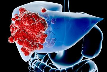 Dấu hiệu cảnh báo sớm ung thư gan