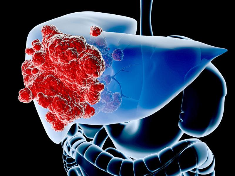 ung thư,ung thư gan,dấu hiệu ung thư gan,triệu chứng ung thư gan,điều trị ung thư gan,phòng tránh ung thư gan