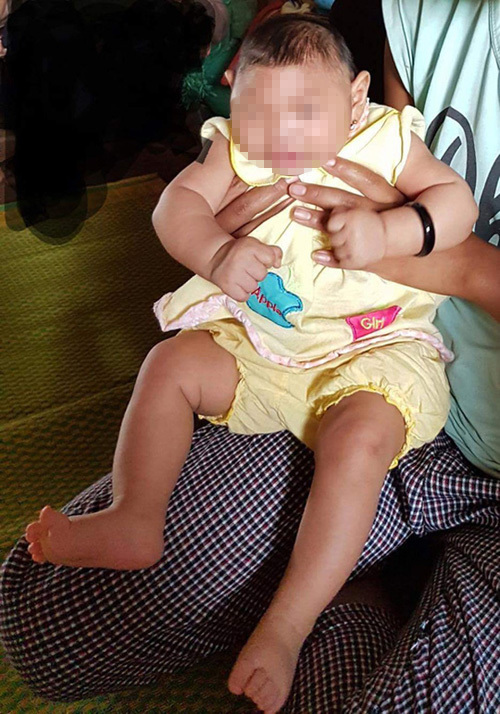 Bé gái VN đầu tiên dị tật đầu nhỏ nghi nhiễm Zika