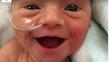 Nụ cười bừng sáng của cô bé sinh non nặng hơn 1 kg