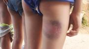 Kỷ luật mức cảnh cáo thầy chủ nhiệm đánh 6 học sinh bầm đùi, mông