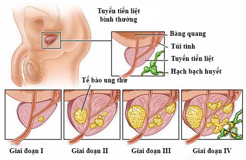 tuyến tiền liệt, ung thư tuyến tiền liệt, ung thư