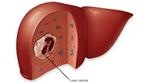 Triệu chứng khó ngờ vùng bụng, nghĩ ngay ung thư gan