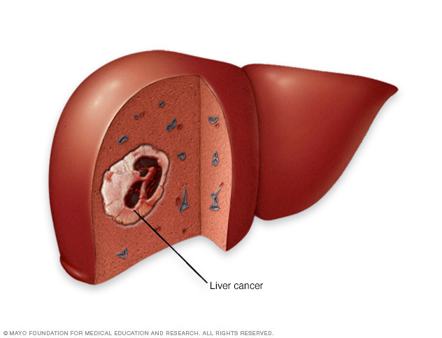 ung thư, ung thư gan, triệu chứng ung thư gan, dấu hiệu ung thư gan, nguyên nhân ung thư gan, điều trị ung thư gan, phòng tránh ung thư gan