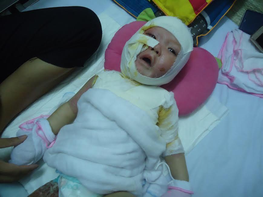 Bị bỏng nặng, bé trai 11 tháng tuổi cần phẫu thuật gấp