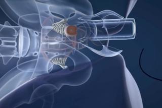 Video phẫu thuật chuyển nam thành nữ