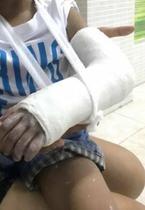 Cô giáo mầm non đánh trẻ 3 tuổi gãy tay