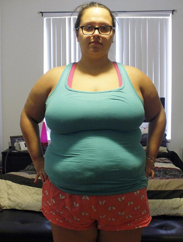 Đống da thừa xấu xí của cô gái giảm gần 60kg