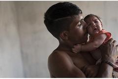 Tinh hoàn sẽ teo còn 1/10 nếu nhiễm phải virus Zika?