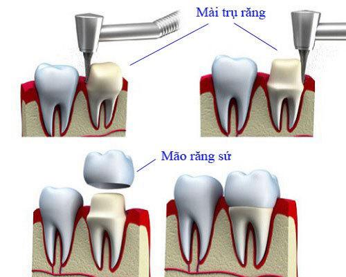 4 ưu điểm nổi bật của thế hệ răng sứ mới Hi-Zirconia