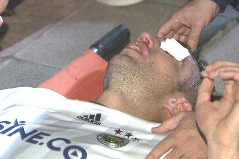 Van Persie suýt mù mắt sau pha va chạm trên sân
