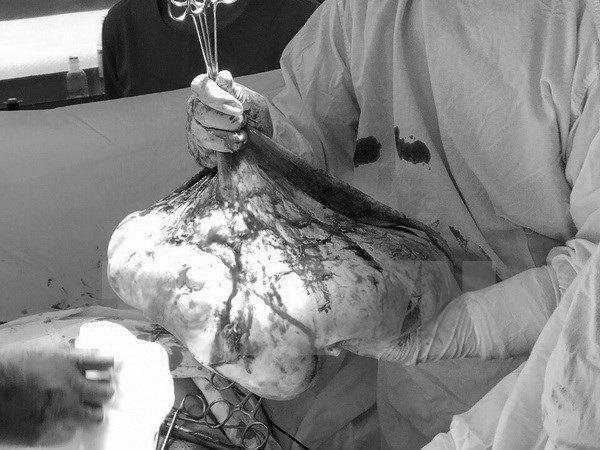 khối u khủng, khối u buồng trứng, mang bầu,