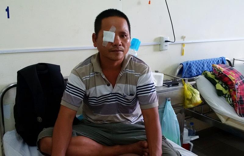 Dân tố bị công an bắn đạn cao su làm hỏng mắt