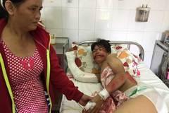 Con đa chấn thương, mẹ nghèo không có tiền đóng viện phí
